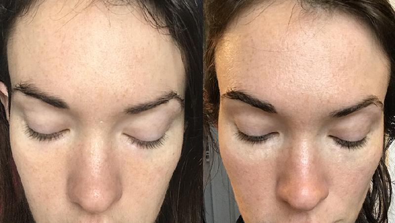 Photo avant / après lipocil expert