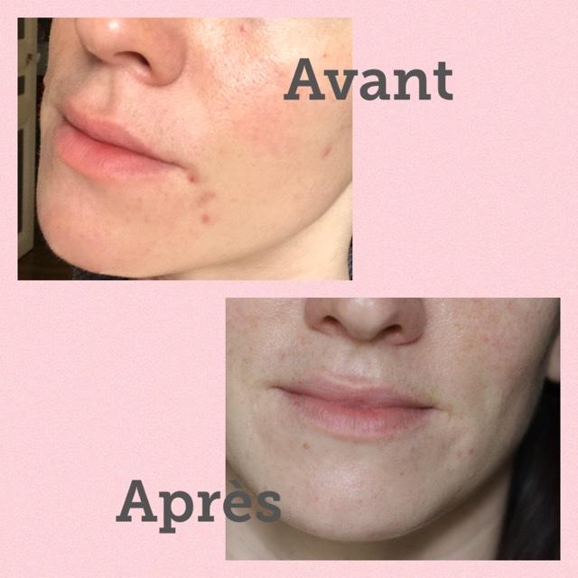 avant / après ma routine pour les peaux à imperfections avec la marque Saeve Paris