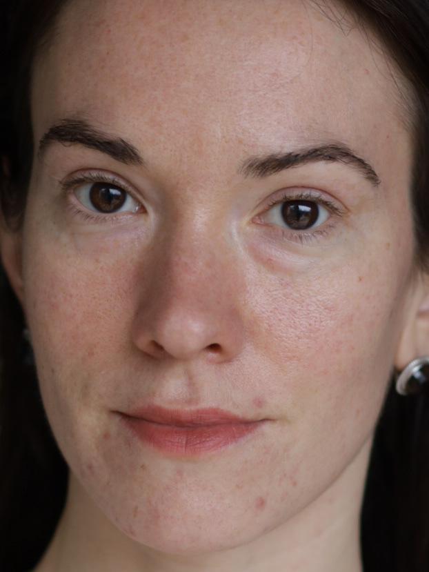 Avant ma cure anti acné